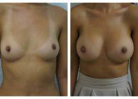 BA-Breast_Augmentation-01