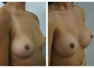 BA-Breast_Augmentation-03