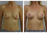 BA-Breast_Augmentation-04
