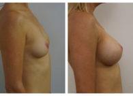 BA-Breast_Augmentation-08