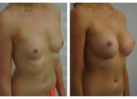 BA-Breast_Augmentation-10