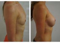 BA-Breast_Augmentation-11