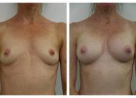 BA-Breast_Augmentation-12
