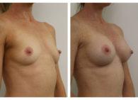 BA-Breast_Augmentation-13